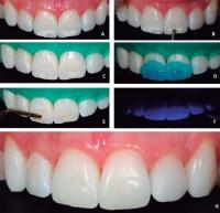Микроабразия - метод удаления пятен с зубов